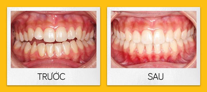 Niềng răng trong suốt Invisalign - Các case điều trị niềng răng trong suốt Invisalign điển hình - Nha khoa hiDental