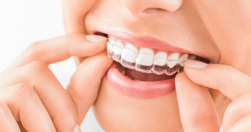 Niềng răng bằng khay trong suốt