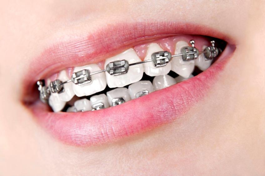Niềng răng cửa mất bao lâu