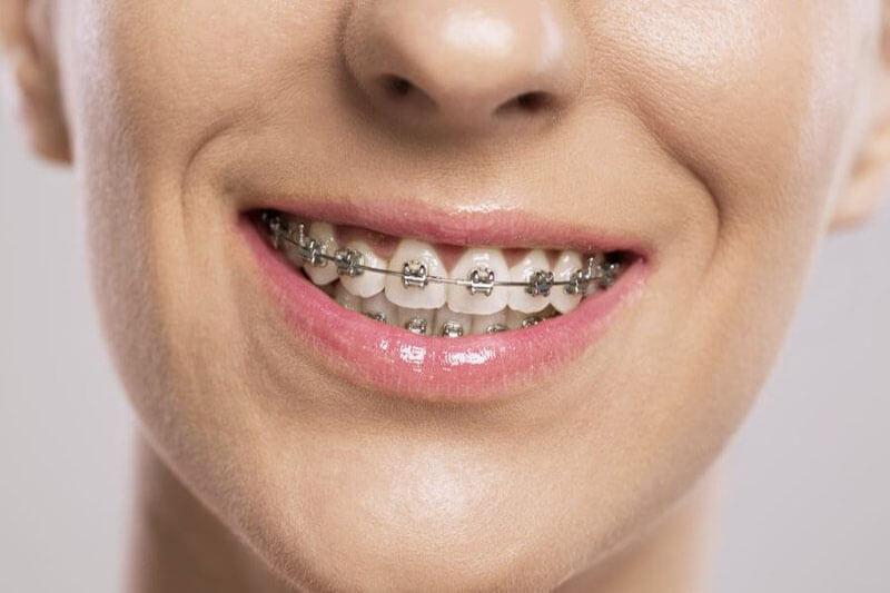 niềng răng tháo lắp mức 1 là gì