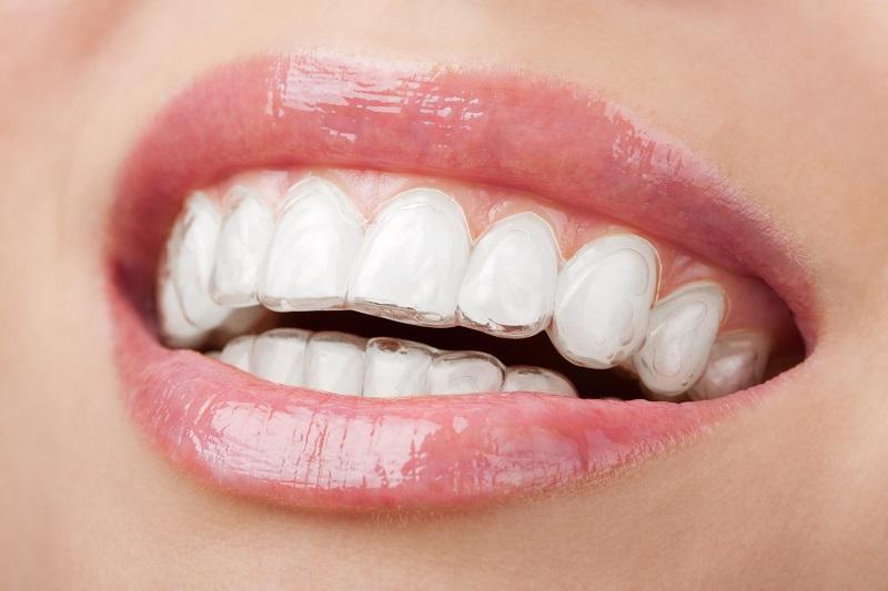 niềng răng trong suốt giá bao nhiêu