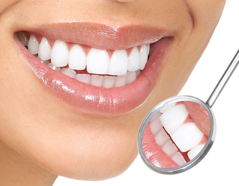 biểu hiện sau khi bọc răng sứ