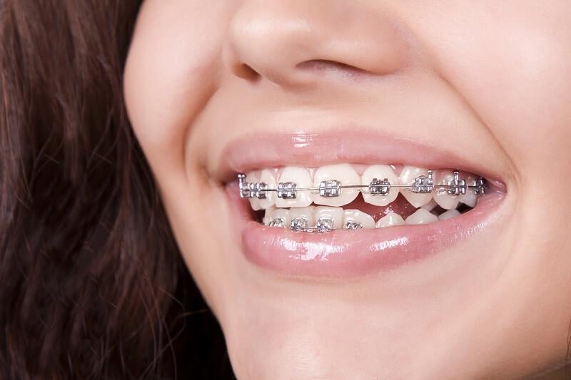 Răng lệch lạc nên niềng hay bọc sứ