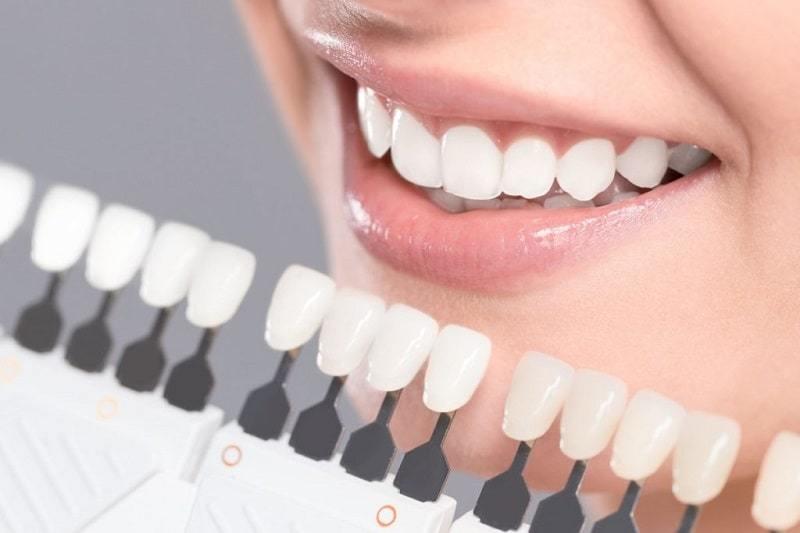 Răng trắng sáng đón valentines cùng người yêu