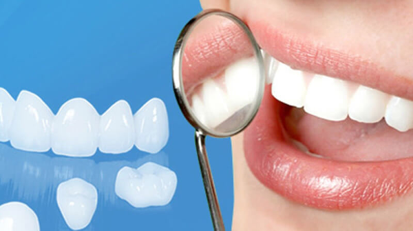 Các biến chứng sau khi bọc răng sứ có thể xảy ra