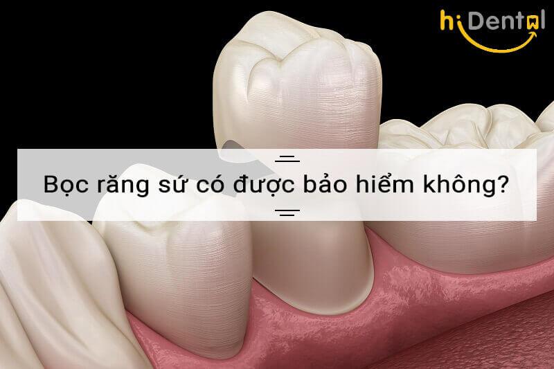 Bọc răng sứ có được bảo hiểm không