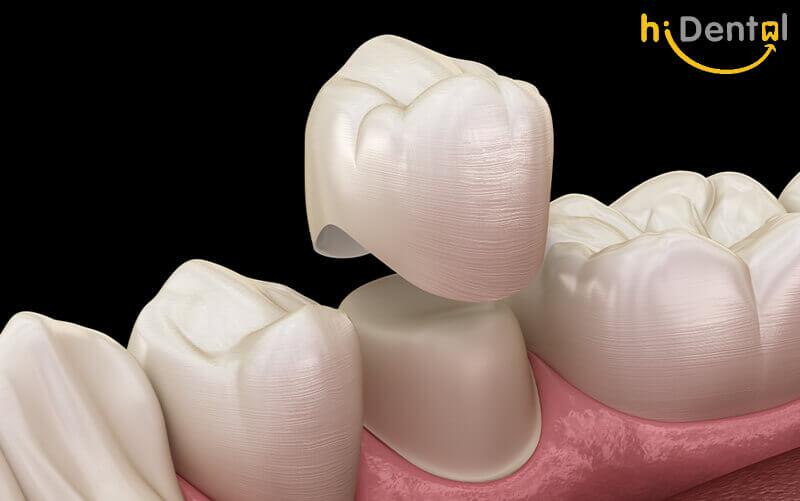 Bọc răng sứ có hại không