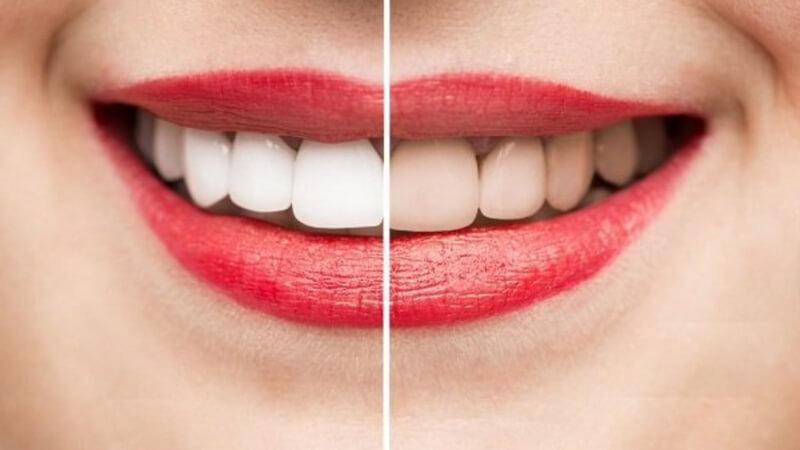 bao lâu tẩy trắng răng 1 lần