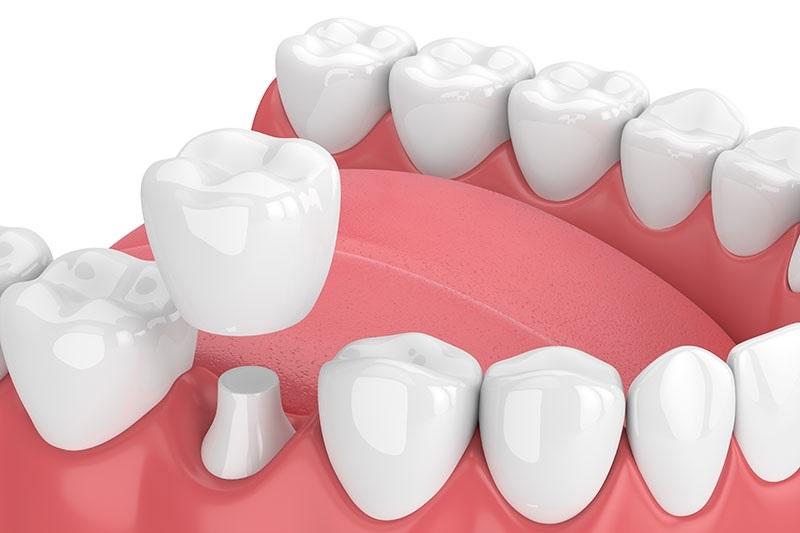 bọc lại răng sứ