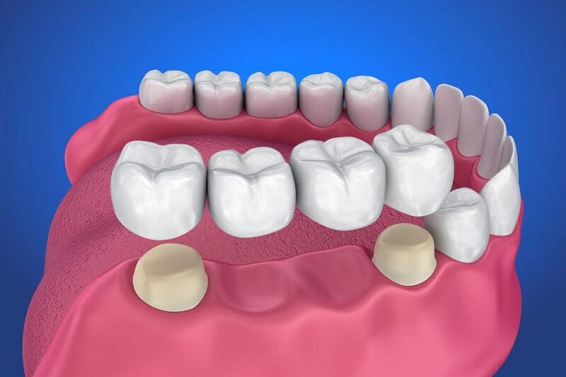 Bọc răng sứ bắc cầu