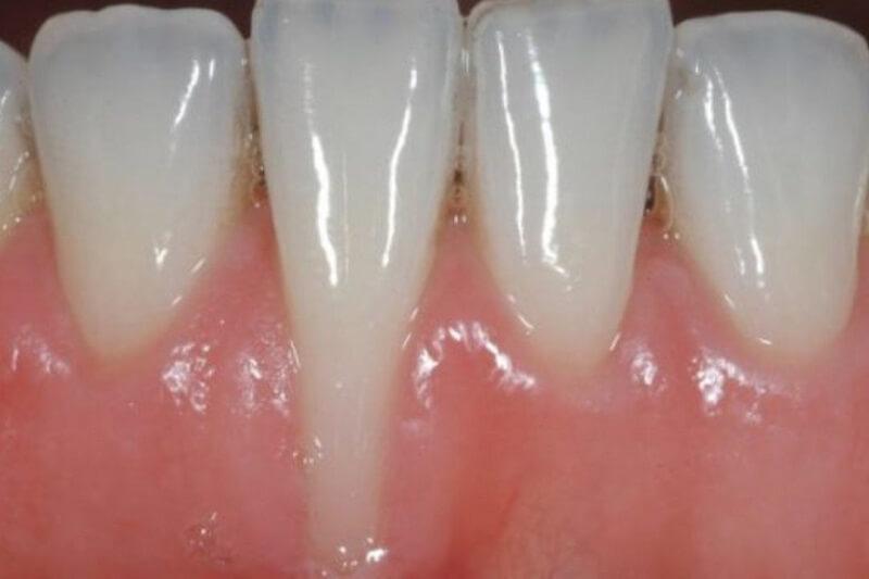 bọc răng sứ bị tụt lợi