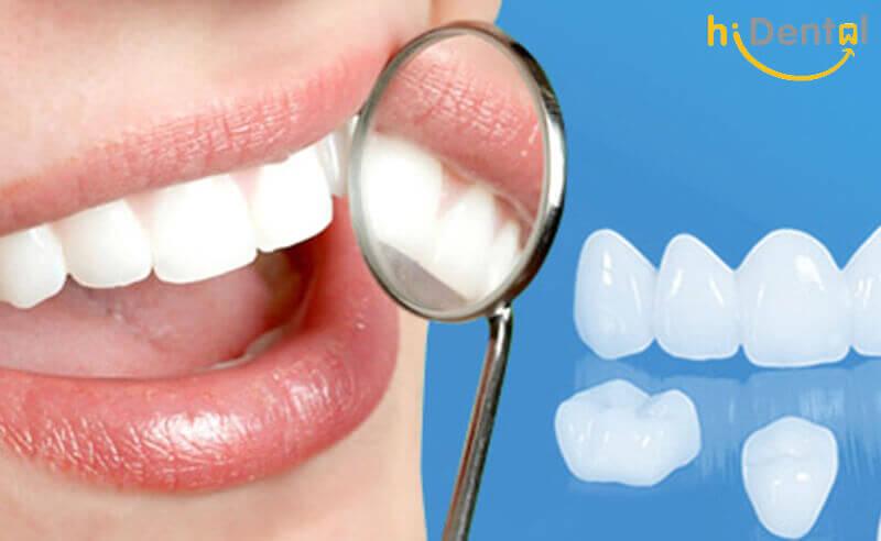 Bọc răng sứ cao cấp
