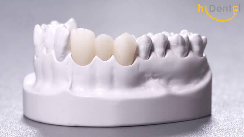 Bọc răng sứ Cercon