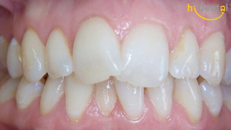 Bọc răng sứ cho răng cửa