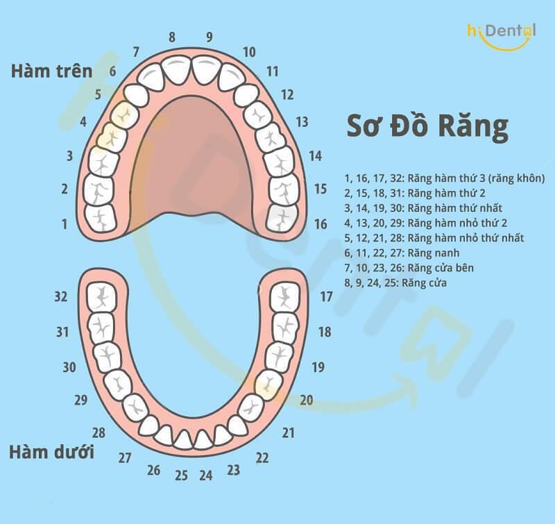 Bọc răng sứ răng hàm