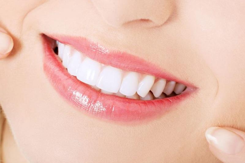 Bọc răng sứ titan