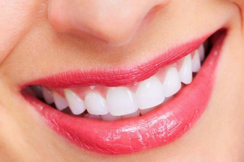 bọc sứ răng giá bao nhiêu