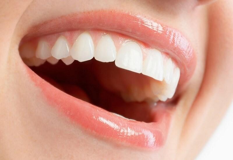 bút tẩy trắng răng
