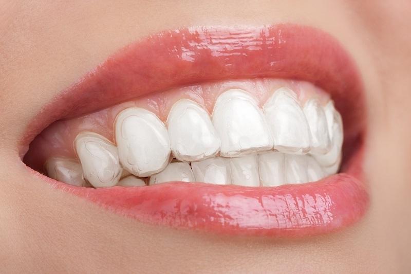 Cách sử dụng máng tẩy trắng răng