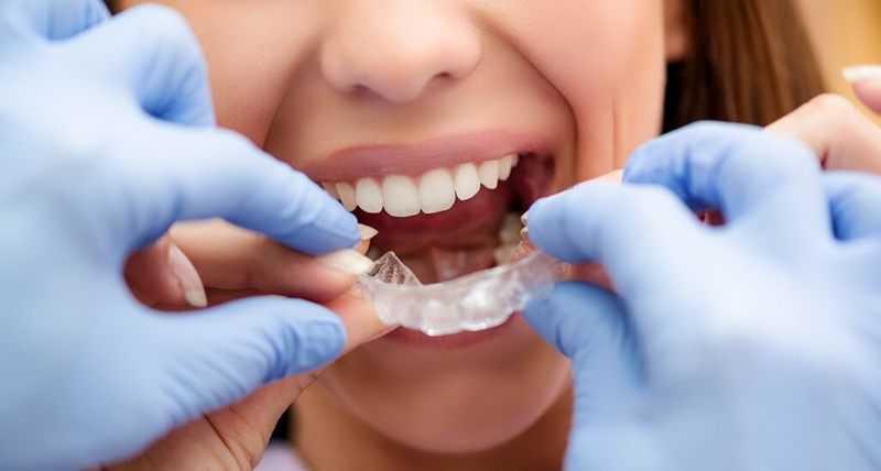 chi phí niềng răng trong suốt