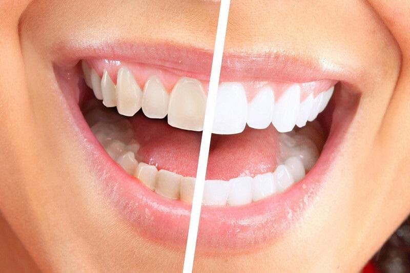 Có nên tẩy trắng răng