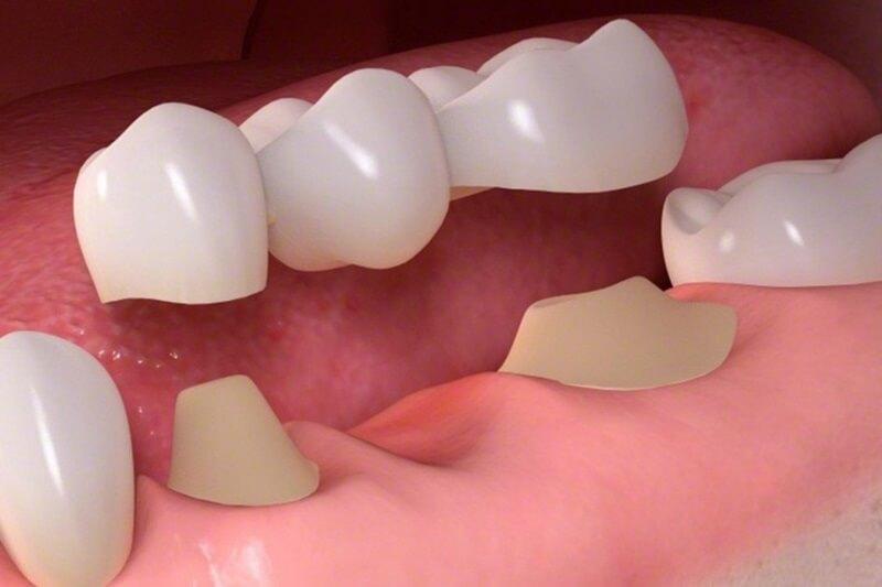 nên bọc răng sứ loại nào