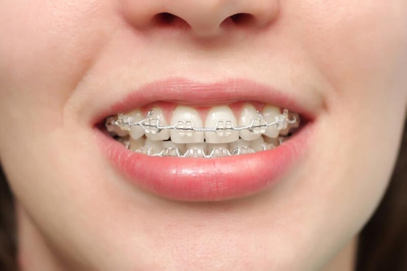 niềng răng có tốt không