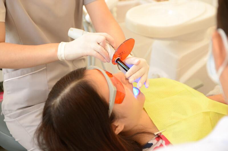 niềng răng hàm dưới