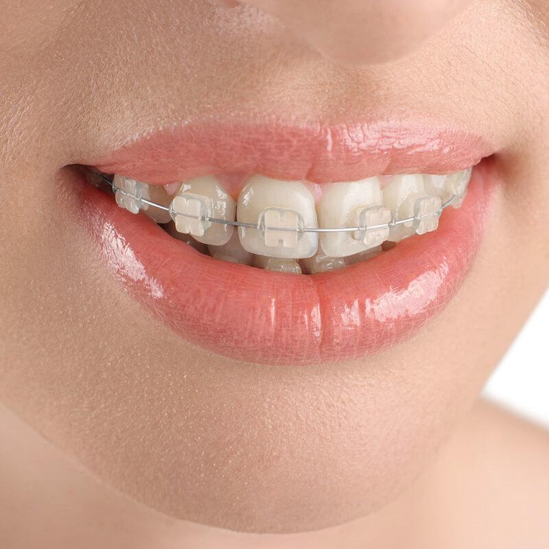 niềng răng hô hàm trên bao nhiêu tiền