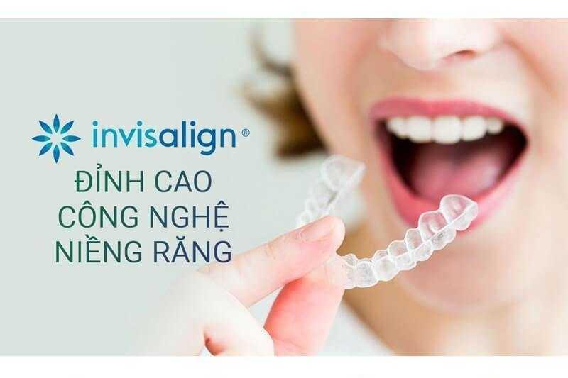 niềng răng invisalign ở đâu tốt