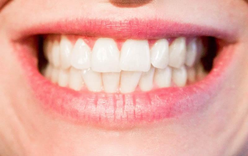niềng răng nhanh nhất