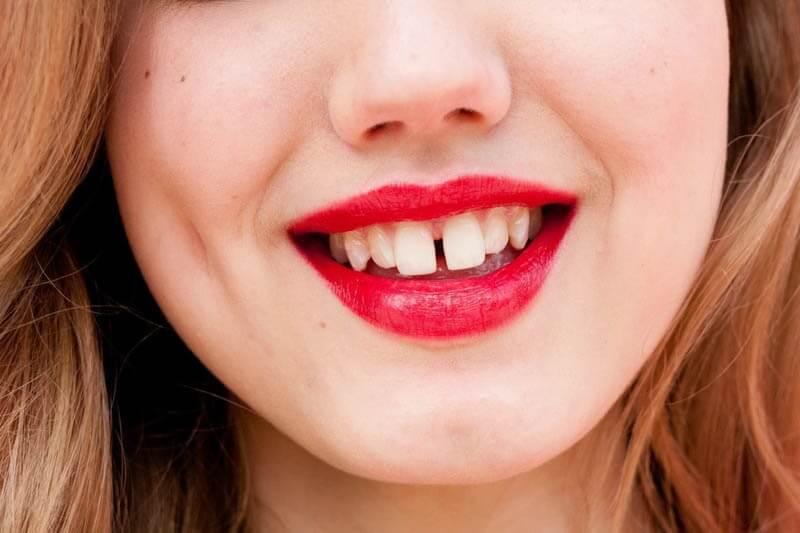 niềng răng thưa
