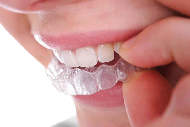 niềng răng trong suốt có đau không