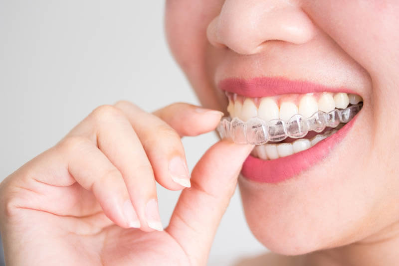 niềng răng trong suốt mất bao lâu