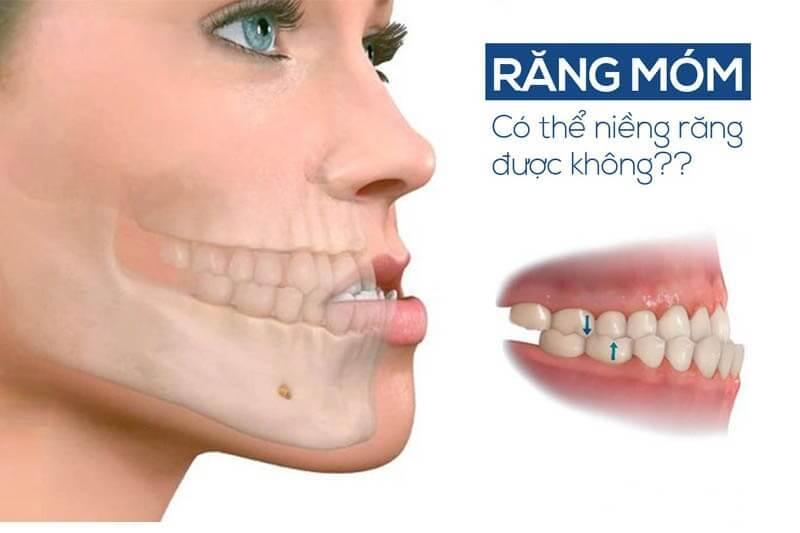 quá trình niềng răng móm