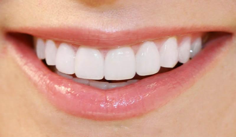sau khi niềng răng