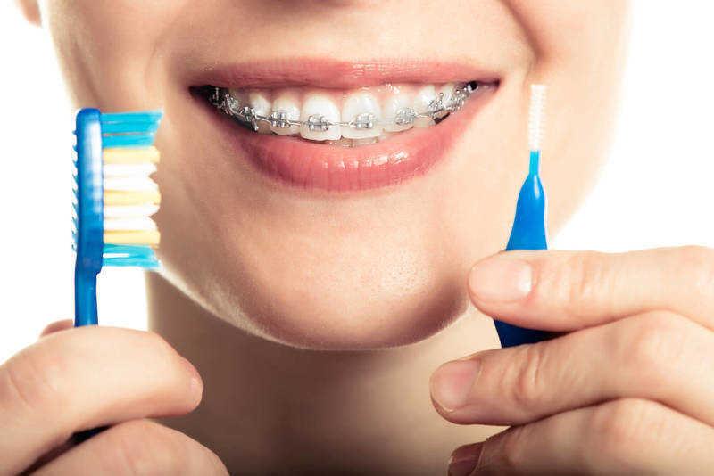 sau khi niềng răng nên làm gì