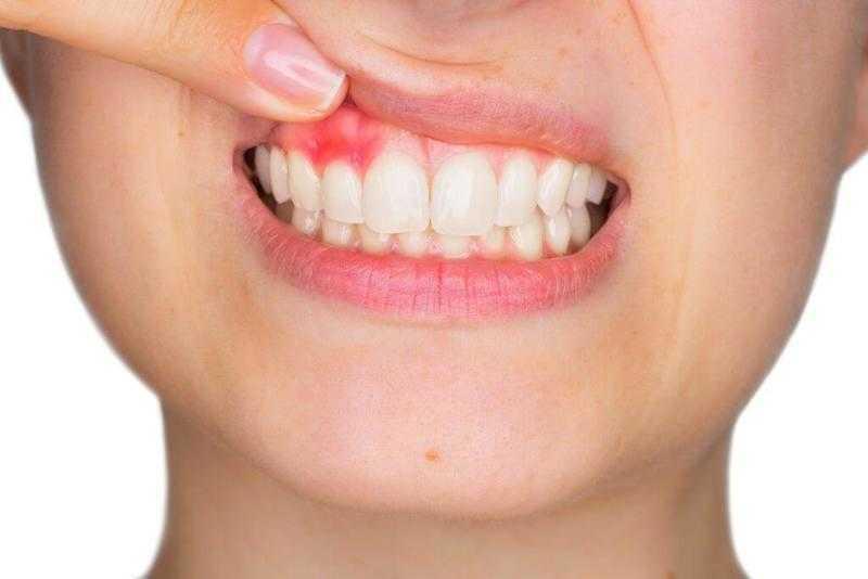 tại sao phải niềng răng