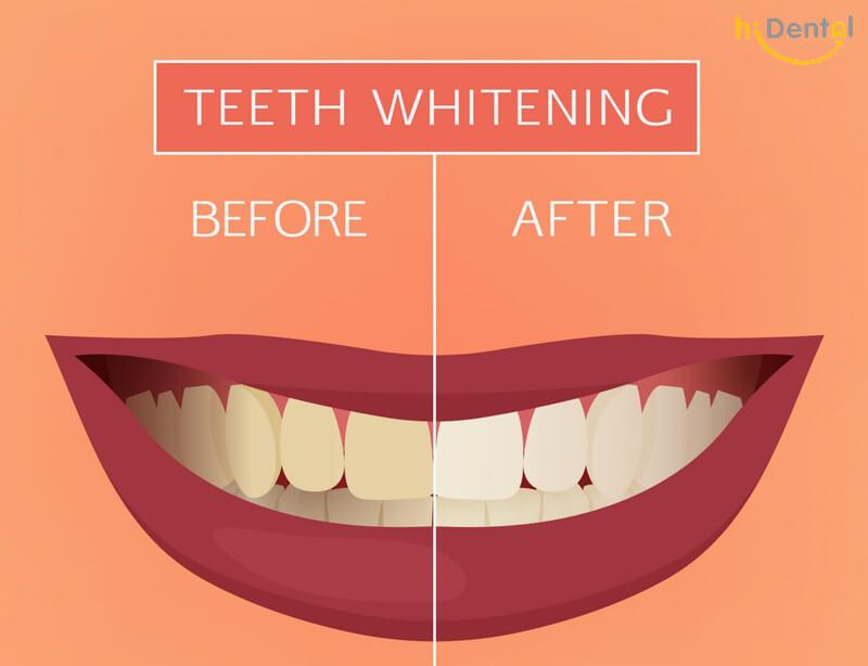Tẩy trắng răng có ảnh hưởng gì không