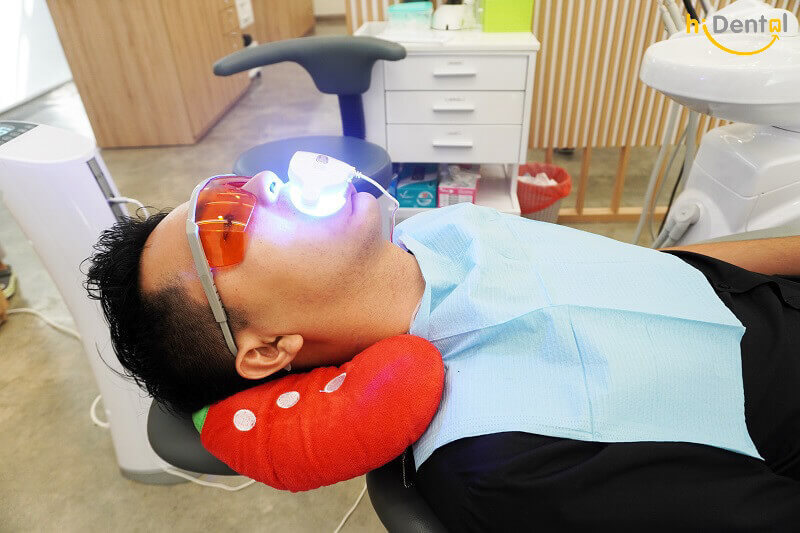 Tẩy trắng răng có mấy loại