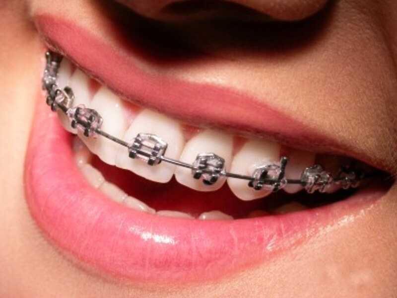 niềng răng tháo lắp